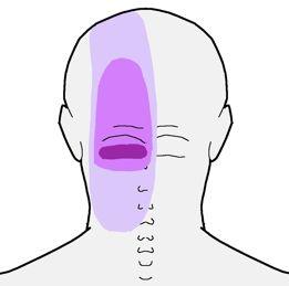 ból potylicy