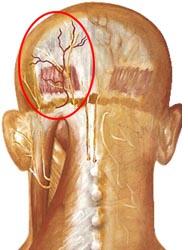 ból głowy z tyłu