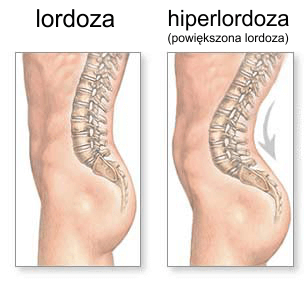 hiperlordoza powiększona