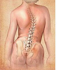 skolioza rehabilitacja