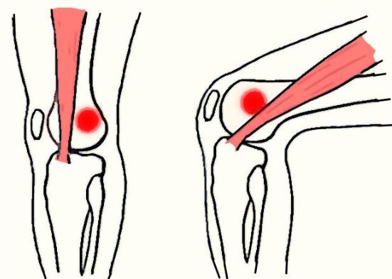 kolano ból z boku
